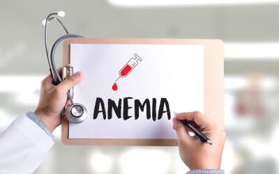 Kako prepoznati nedostatak željeza (anemiju)